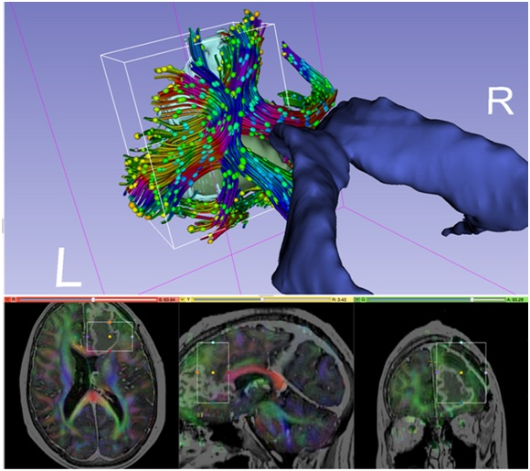 3D Slicer diffusion MRI visualization